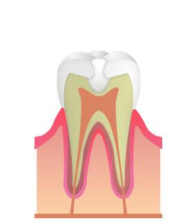 最新のMTAセメント充填法で歯の神経を残す治療を行っています